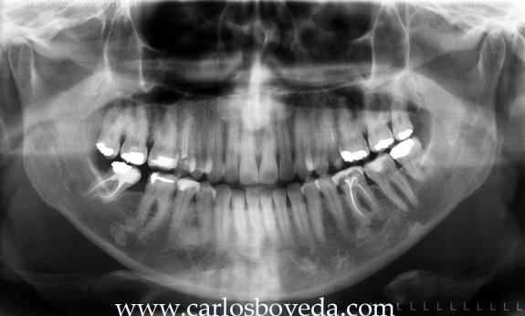 Endodoncia Interactiva 5 - 2a. Parte - Carlos Bóveda Z. - Venezuela